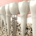 Minimalinvasive Implantate